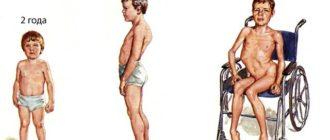 Первый препарат для лечения миодистрофии Дюшенна
